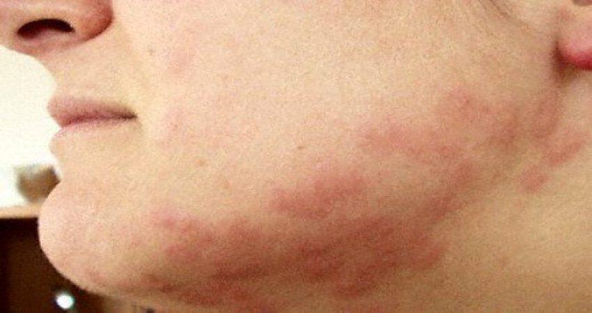 hình ảnh vết đốt của rệp giường
